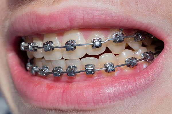 Braces to correct alignment of upper and lower teeth