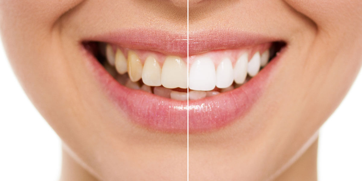 Before and After Image of Whitened Teeth